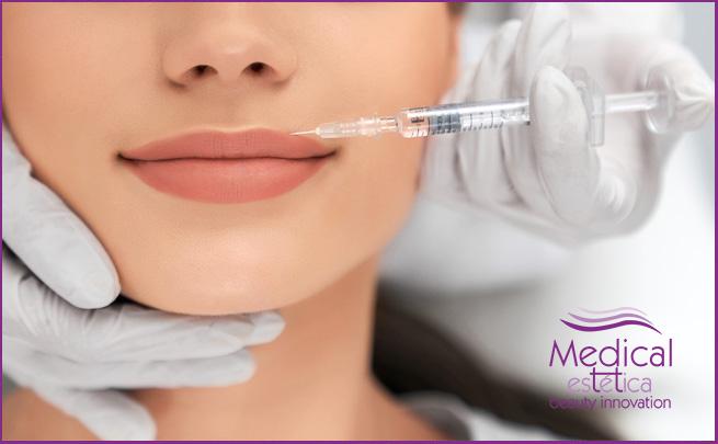 Tratamiento de aumento de labios en Granada